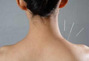 βελονισμός σε γυναίκα με πόνο στους τραπεζοειδείς μυες