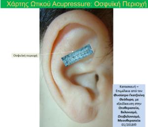 ΕΙκόνα αυτιού στην οποία παρουσιάζεται η οσφυική περιοχή, η οποία αποτελεί μέρους της ύλης της 2ης ενότητας του σεμιναρίου. Αυτή η περιοχή χρησιμοποιείται γι αντιμετωπιστεί και ο Χρόνιος Πόνος στην περιοχή. Auricular Neuroreflex Therapy - Auricular Acupuncture - Acupressure, lumbar spine auricular chart by Theodoros Gatzounis