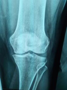 Αντινογραφία σε οστεοαρθρίτιδα γόνατος